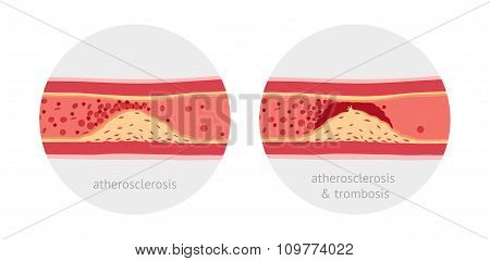 Vessels with atherosclerosis and atherotrombosis vector illustration poster
