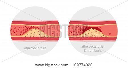 Atherotrombosis in vessels