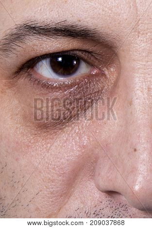 Adult's man eyes with very dark rings