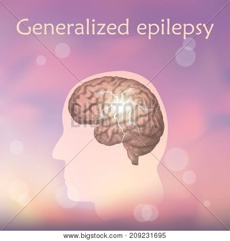 Generalized epilepsy. Vector medical illustration. Blurred pink background, silhouette of man, anatomy image of brain, electrical discharge.