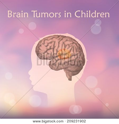 Brain tumors, cancer in infants, childhood. Vector medical illustration. Kid, baby, childhood. Blurred pink background, silhouette of child head, anatomy image.