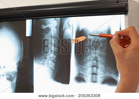Hand with pointer working with  images of  spine  and skull at x-ray film viewer. Diagnosis,treatment planning