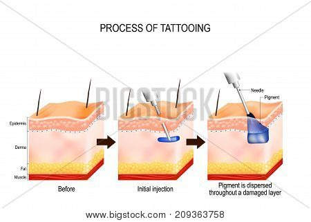 tattoo process. The tattooing process causes damage to the epidermis and dermis. Every time the needle penetrates it causes a wound that alerts the body immune system. Pigment gets soaked up by skin cells and stay suspended in the dermis in perpetuity.