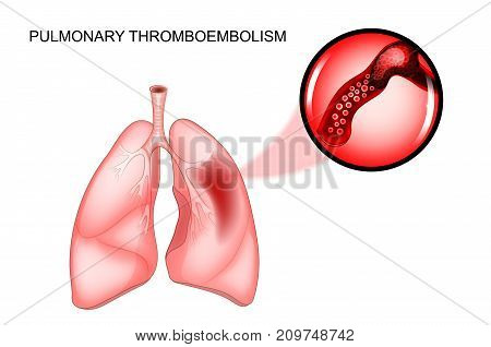vector illustration of pulmonary thromboembolism. thrombosis of the vessel