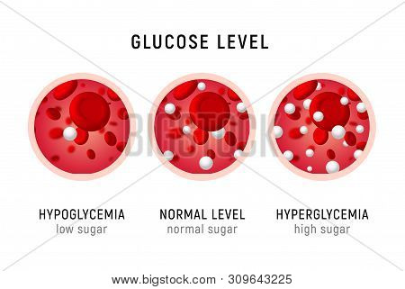 Glucose Blood Level Sugar Test. Diabetes Insulin Hypoglycemia Or Hyperglycemia Diagram Icon