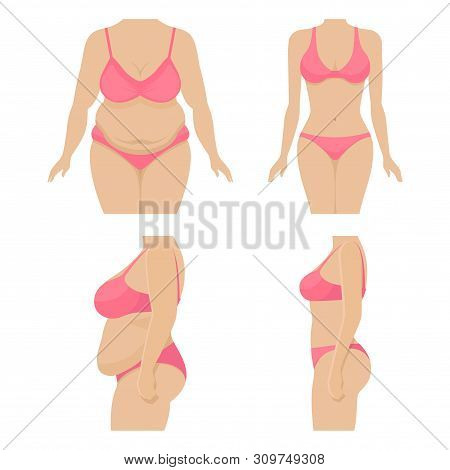 Set Body Of A Woman Before And After Losing Weight. Fat And Thin Female Body. Belly And Breasts Of A