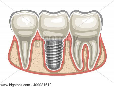 Vector Illustration Of Dental Implant, 3 Human Teeth In A Row And Ceramic Artificial Tooth With Scre