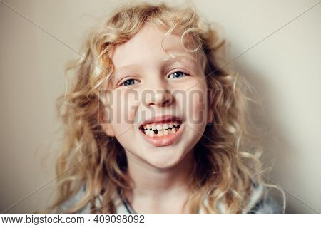 Closeup Of Smiling Caucasian Blonde Girl Showing Her Missing Lost Milk Tooth. Dental Oral Health Hyg