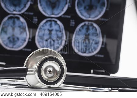 Scientific Analysis Of Alzheimer's Disease In Hospital, Conceptual Image