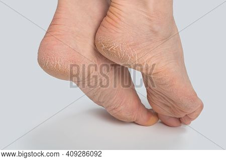 Dry And Cracked Soles Of Feet On White Background, Womans Feet With Dry Heels, Cracked Skin. Close U