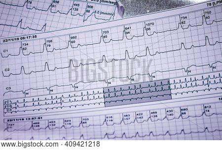 Electrocardiogram Strips With Cardiac Arrhythmias. Acute Myocardial Infarction. Selective Focus On S