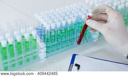 Modern Immunological Laboratory Studies. A Test Tube With A Blood Sample In The Hands Of A Doctor. F