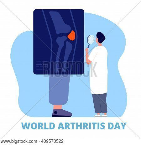 World Arthritis Day. Medicine, Defense Joint, Health And Care. Osteoarthritis, Doctor Examine Leg Kn