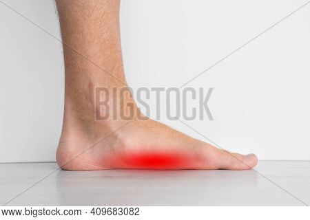 Foot Pain Because Of Strong Flat Feet Also Called Pes Planus Or Fallen Arches. The Arches On The Ins