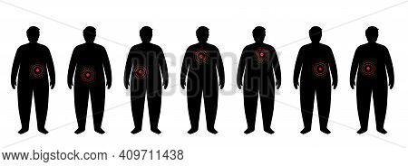 Pain In Obese Man Body. Problem With Liver, Pancreas, Lungs And Other Organs In Overweight Male Silh