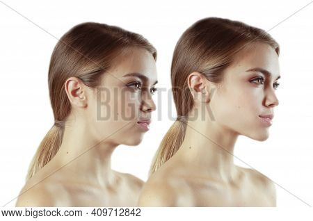 Woman Double Chin Before And After Correction