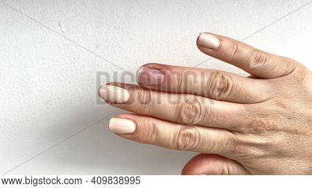 Paronychia, Swollen Finger With Fingernail Bed Inflammation Due To Bacterial Infection On A Toddlers