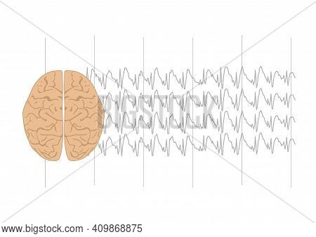 Vector Illustration Of Human Brain And Abnormal Generalized Spkie And Wave Complexes  Representing G