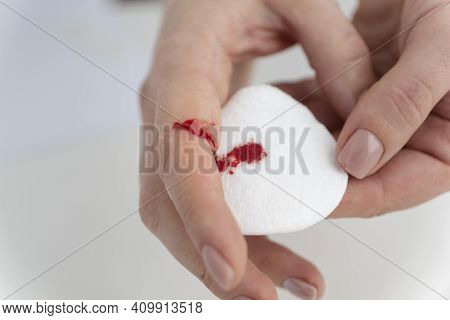 Close Up Image Of Bleeding Finger Of Young Female, Cotton Pad Collecting Blood. Accident Due To Care