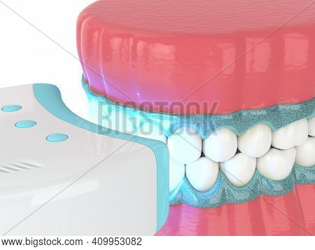 3D Render Of Jaw With Teeth Bleaching By Uv Lamp