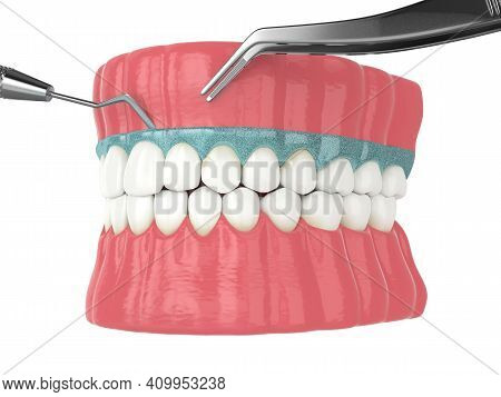 3d Render Of Jaw With Removing The Silicone Mask From The Gums. Protecting The Gums Before Teeth Whi