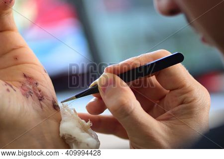 Abrasions On The Palm And Scratches On The Right Arm Of An Adult Man. Home Treatment. Removing The B