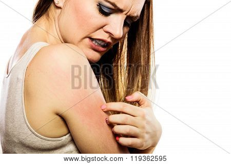 Woman Scratching Her Arm