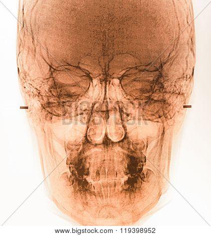 Film X-ray Scan Human