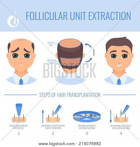 Male hair loss FUE medical treatment. Stages of follicular unit extraction procedure. Alopecia infographic design template for transplantation clinics and diagnostic centers. Vector illustration.