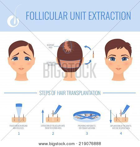 Female hair loss FUE medical treatment. Stages of follicular unit extraction procedure. Female alopecia infographic vector design template for transplantation clinics and diagnostic centers.