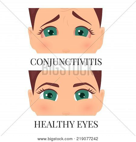 Woman with conjunctivitis. Closeup view. Patient with pinkeye. Infectious viral disease. Medical concept. Anatomy of people. Vertical vector illustration.