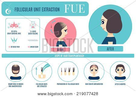 Female hair loss FUE medical treatment vector infographic. Stages and benefits of follicular unit extraction procedure for women. Alopecia design  for transplantation clinics and diagnostic centers.