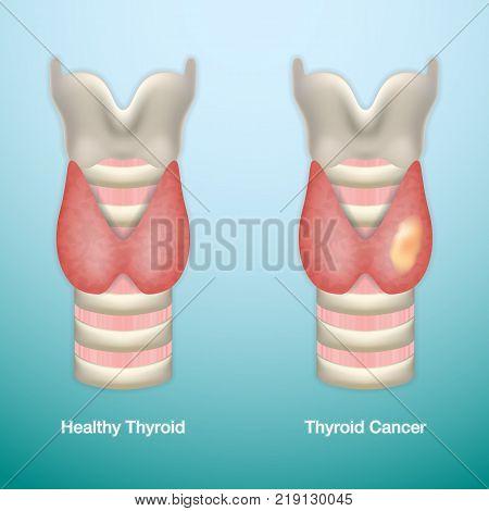 Healthy Thyroid and Thyroid Cancer. Vector Illustration.