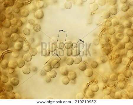 Many spores of a slime mold, or myxomycete. Yellow color. High score microscopy. Slime moulds are special organisms that gather from many microscopic unicellular amoebae