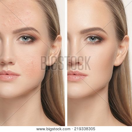 The female face of woman before and after treatment, collage