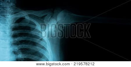 right Chest X-ray image from a human body part banner size. ideal for websites and magazines layouts