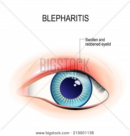 Eye of human. Blepharitis is a inflammation and reddening of the eyelid. Human anatomy. Vector diagram for educational and medical use.