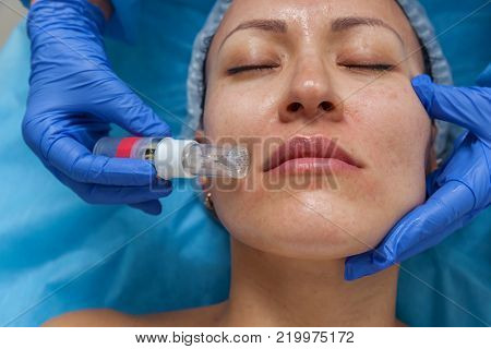 Cosmetic treatment by injection in the clinic. Use of a dermal injector to stimulate the skin. A woman receives injections of a placental-peptide serum