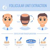 Male hair loss FUE medical treatment. Stages of follicular unit extraction procedure. Alopecia infographic design template for transplantation clinics and diagnostic centers. Vector illustration. poster
