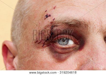 Male Eye With A Large Purple Bruise. Biting Dog On Face. Eye Injury. Large Bruising On The Male Eye.