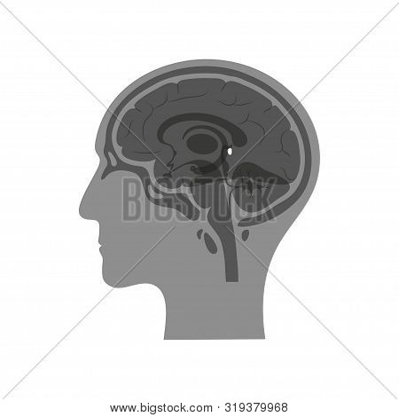 Vector Isolated Illustration Of Pineal Gland In Man Head. Human Brain Components Detailed Anatomy. M