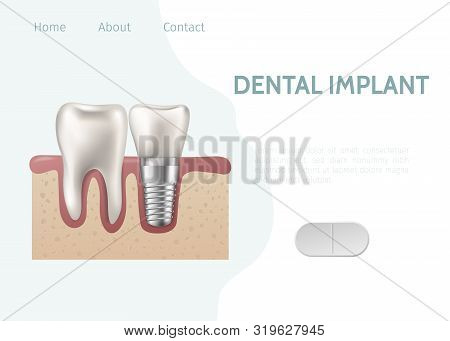 Implant And Healthy Tooth And Structure Vector Illustration. Dental Implant Structure With All Parts