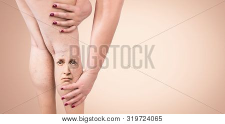 Legs With Varicose Veins. Cropped Image Of Woman Massaging Her Tired Legs. Pain And Human Emotions C