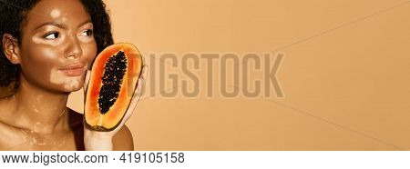 Woman With Vitiligo Has Papaya In Her Hands, Beige Background. Concept Of Moisturizing And Pampering