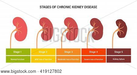 Kidney Disease Vector Illustration. Stages Of Development Of Renal Failure In The Human Body. Medica