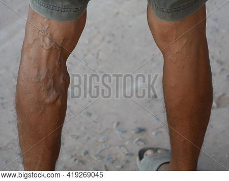 The Severity Of The Varicose Veins Ranges From The Tiny Capillaries, Pain In The Legs, Swollen Feet