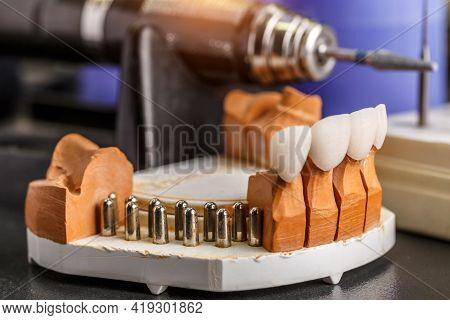 Dental Implant. Restoration Of Teeth. Dental Surgeon. Dental Laboratory. Dental Clinic. Implants Of