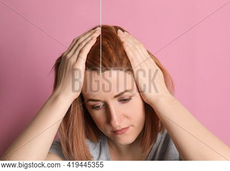 Woman Suffering From Baldness On Pink Background, Closeup. Before And After Treatment, Collage