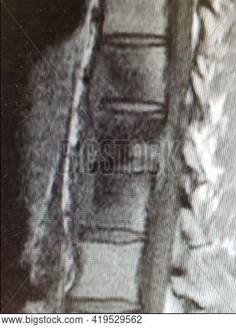 Coccidioides Imitis Vertebral Osteomyelitis With Prevertebral Abscess
