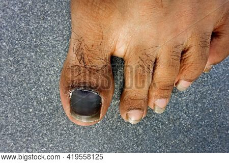 A Close Up Shot Blood Clot Under The A Big Toe Nail Due To Injury. Also Know An Runner's Toe Or Tenn